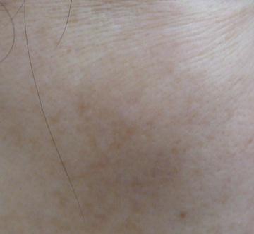 広島プルミエクリニックのシミ治療(シミ取り)・肝斑・毛穴治療の症例写真[アフター]