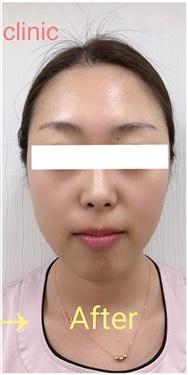 エストクリニックのニキビ治療・ニキビ跡の治療の症例写真[アフター]