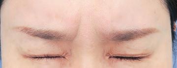 湘南美容クリニック 武蔵小杉院の顔のしわ・たるみの整形の症例写真[ビフォー]
