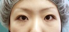 青山セレスクリニックの目・二重の整形の症例写真[アフター]