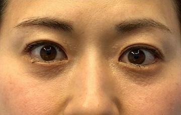 湘南美容クリニック 川崎院の目・二重の整形の症例写真[アフター]