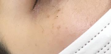 エレナクリニック 新宿本院のシミ治療(シミ取り)・肝斑・毛穴治療の症例写真[ビフォー]