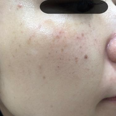BBL光によるシミ治療の症例写真[ビフォー]