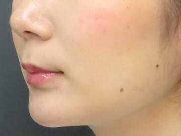 TCB 東京中央美容外科 京都院の痩身、メディカルダイエットの症例写真[アフター]