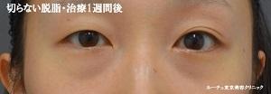 ルーチェ東京美容クリニック 池袋院の目元の整形、くま治療の症例写真[アフター]