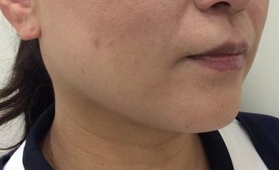 リフトアップ小顔「溶ける糸治療」でマイナス5歳の若返りの症例写真[アフター]