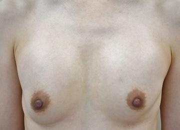タウン形成外科クリニックの豊胸手術(胸の整形)の症例写真[ビフォー]