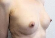 青山セレスクリニックの豊胸手術(胸の整形)の症例写真[アフター]