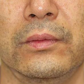 タカナシクリニック新宿の医療レーザー脱毛の症例写真[ビフォー]