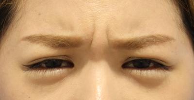 【眉間に刻み込まれたシワ、解消しませんか?】ボトックス注射の症例写真[ビフォー]