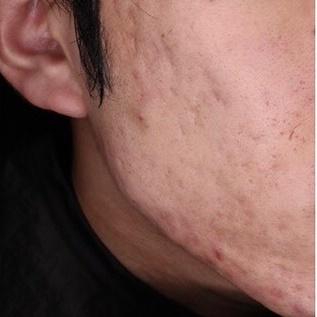 ハルスクリニックのニキビ・ニキビ跡の治療の症例写真[ビフォー]