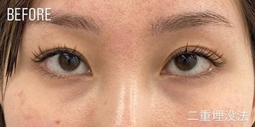 GLANZ CLINIC (グランツクリニック)の目・二重の整形の症例写真[ビフォー]