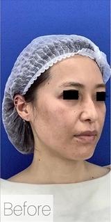 La Clinique Ginza(ラ クリニック銀座)のシワ・たるみ(照射系リフトアップ治療)の症例写真[ビフォー]