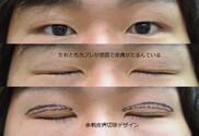 心斎橋コムロ美容外科クリニックの症例写真