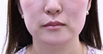 心斎橋コムロ美容外科クリニックの痩身、メディカルダイエットの症例写真[アフター]