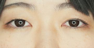 東京イセアクリニック 渋谷院の目・二重の整形の症例写真[ビフォー]