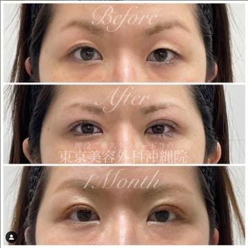 東京美容外科 沖縄院の目・二重整形の症例写真