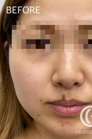 GLANZ CLINIC (グランツクリニック)のホクロ除去・あざ治療・イボ治療の症例写真[ビフォー]