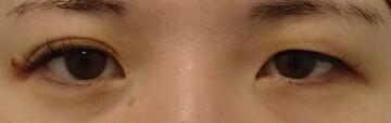 みらいビューティークリニック和歌山の目・二重の整形の症例写真[ビフォー]