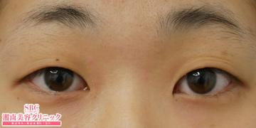 湘南美容クリニック姫路院の目・二重の整形の症例写真[ビフォー]