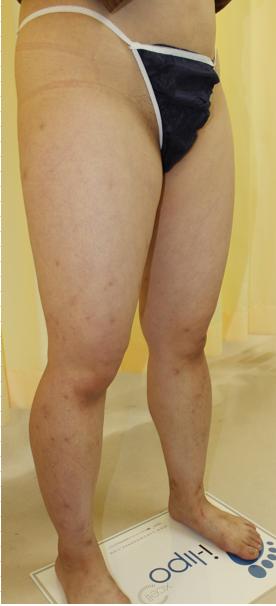 千葉中央美容形成クリニックの脂肪吸引の症例写真[ビフォー]