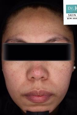 皮フ科 かわさきかおりクリニックのシミ治療(シミ取り)・肝斑・毛穴治療の症例写真[ビフォー]