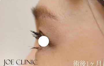 ジョウクリニックの目元整形・クマ治療の症例写真[アフター]