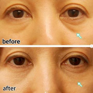 恵比寿美容クリニックの目元の整形、くま治療の症例写真