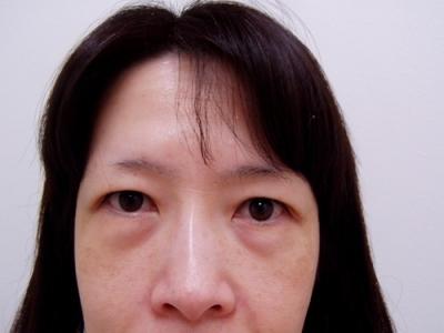 目の下のたるみ取り(ハムラ法)の症例写真[ビフォー]