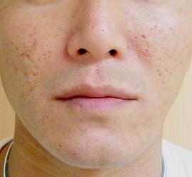 オザキクリニックLUXE新宿のニキビ治療・ニキビ跡の治療の症例写真[ビフォー]