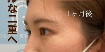ロレシー美容クリニック 心斎橋駅前院の症例写真[アフター]