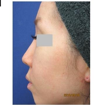 新宿ビューティークリニックの鼻の整形の症例写真[ビフォー]