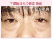 仙台中央クリニックの目元の整形、くま治療の症例写真[ビフォー]