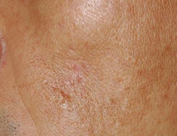 シロノクリニック恵比寿の傷跡治療、ケロイドの症例写真[アフター]