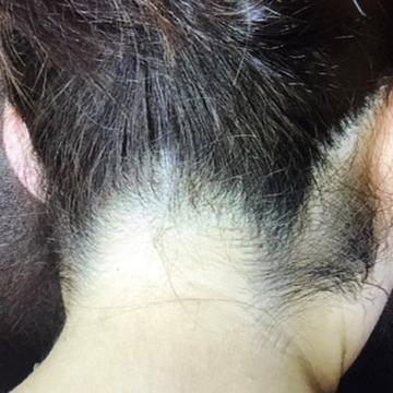 ふじもと皮フ科クリニックの医療レーザー脱毛の症例写真[ビフォー]