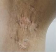 共立美容外科・歯科の傷跡治療、ケロイドの症例写真[ビフォー]