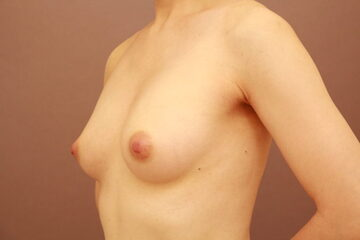 Mods Clinic (モッズクリニック)の豊胸手術(胸の整形)の症例写真[アフター]