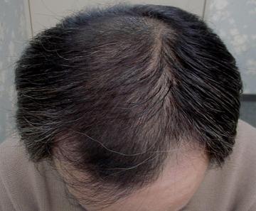 佐井泌尿器科・皮フ科クリニックの薄毛治療の症例写真[アフター]