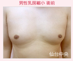 仙台中央クリニックの豊胸手術(胸の整形)の症例写真[ビフォー]