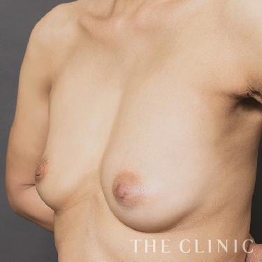 カプセル拘縮のセルチャー豊胸(培養幹細胞豊胸)の症例写真[アフター]