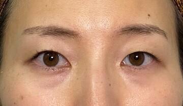 東京美容外科 秋田院の目・二重整形の症例写真[ビフォー]