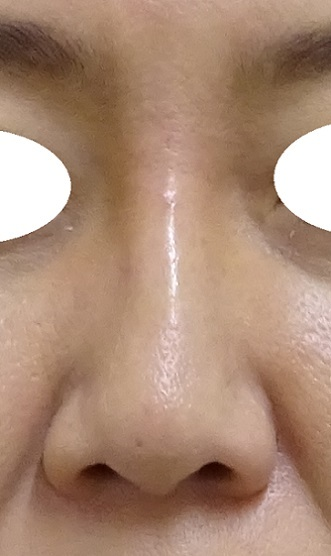 TCB東京中央美容外科の鼻の整形の症例写真[アフター]
