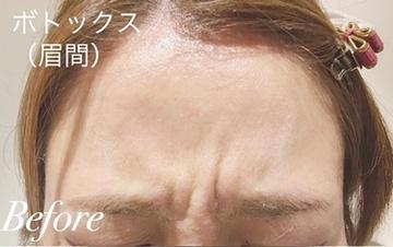 表参道スキンクリニックの顔のしわ・たるみの整形(リフトアップ手術)の症例写真[ビフォー]