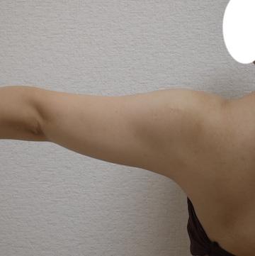 しらさぎ形成クリニックの脂肪吸引の症例写真[ビフォー]