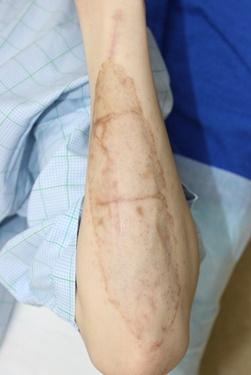 タウン形成外科クリニックのタトゥー除去(刺青・入れ墨を消す治療)の症例写真[アフター]