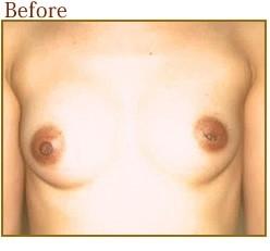 陥没乳頭治療の症例写真ですの症例写真[ビフォー]