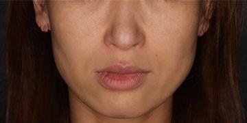 SELECT CLINIC (セレクトクリニック)のシミ治療(シミ取り)・肝斑・毛穴治療の症例写真[アフター]