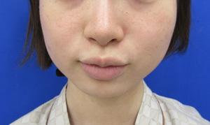 ガーデンクリニックの顔のしわ・たるみの整形(リフトアップ手術)の症例写真[ビフォー]