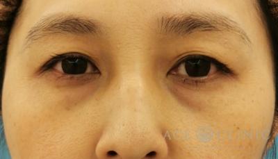 切らないクマ治療 ウルトラセルQ+・ヒアルロン酸の症例写真[ビフォー]
