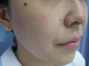 鹿児島三井中央クリニックの顔のしわ・たるみの整形(リフトアップ手術)の症例写真[ビフォー]